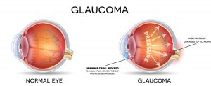 Glaucoma. Detailed anatomy of Glaucoma and healthy eye.
